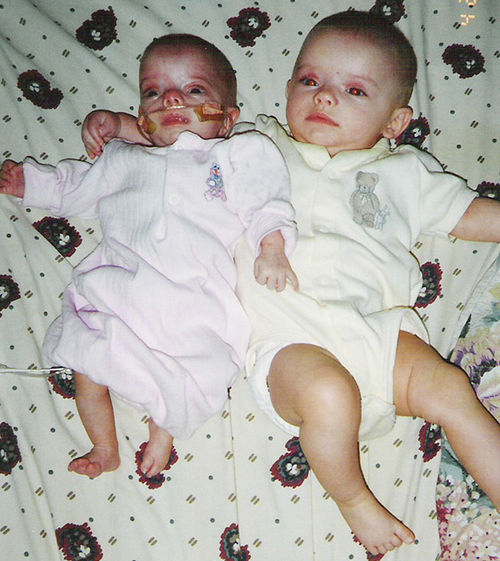 At birth, Sienna was more than a month behind twin sister Sierra developmentally.
