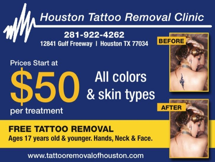 Houston Tattoo Removal