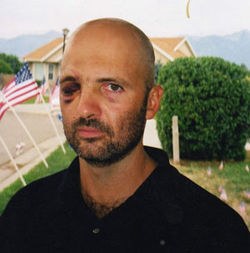 ...before he was hit by shrapnel and lost his right eye in the 2002 firefight with Omar Khadr.