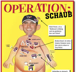 Relieve your childhood with Operation Schaub.