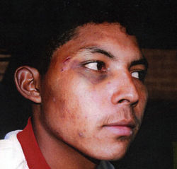 Jurors during the trial saw pictures of Elmer's wounds from being beaten by smugglers.
