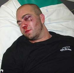 Zach Corcoran in the hospital hours after his fight with the cadets. Click here for more photos of his injuries.