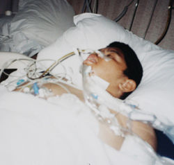 When Haseeb did not want to go to bed, his caregiver punched and kicked him more than a dozen times.