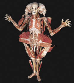 Boo! Von Hagens's enthusiasm for plastination crosses way over into the creepy (pictured here: Winged Man).